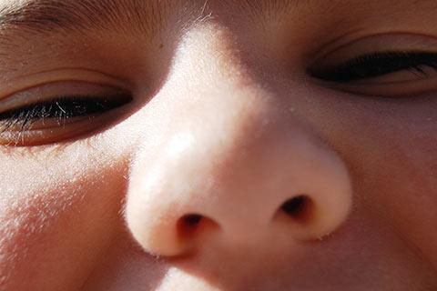 鼻の角栓の正体はたんぱく質!酵素とビタミンC誘導体で撃退しよう!