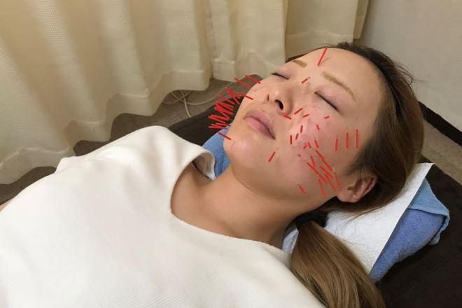 中国はり&Beautykassaの画像2