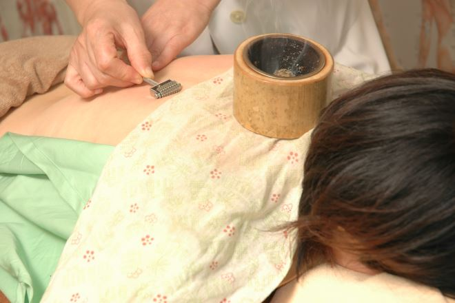Sinkyu Japan 鍼灸はとてもおススメなので是非あなたも。