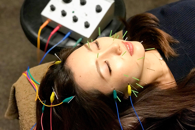 芦屋 楓鍼灸院 電気を流す「美容鍼」を体験していただけます