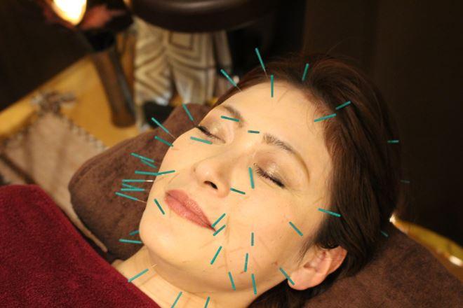 美容鍼で的確に部位へアプローチ