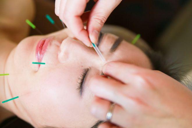 美容鍼灸サロンSAKURA 丁寧な施術