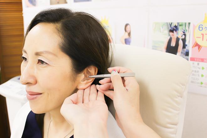 花みずき 耳のつぼを刺激する短時間の施術