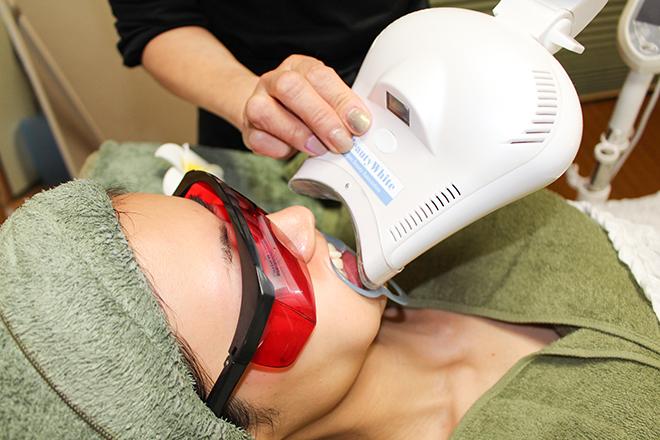 シャイン(トータルビューティーサロン Shine) 歯のセルフホワイトニングもご提供しています