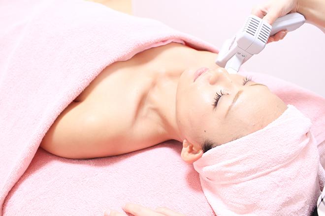 Dione 神戸三宮店 お顔すみずみまでできるやさしい脱毛!