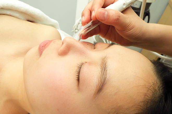 アイヨコハマ(BeautyTherapy Ai YOKOHAMA) 特殊マスクなども使用してより美しいお肌へ
