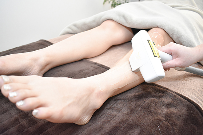 アポロ(APOLLO) お肌に負担の少ない施術