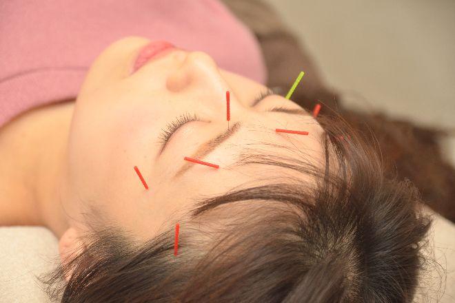 鍼灸治療院エイル(Eir) 一番人気の美容鍼でキレイを形に