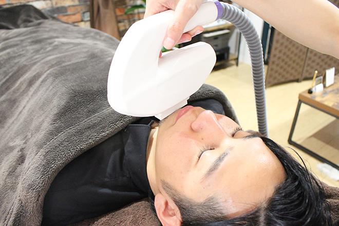 アバンティ(Avanti) 清潔感が上がる「ひげ脱毛」が一番人気です!