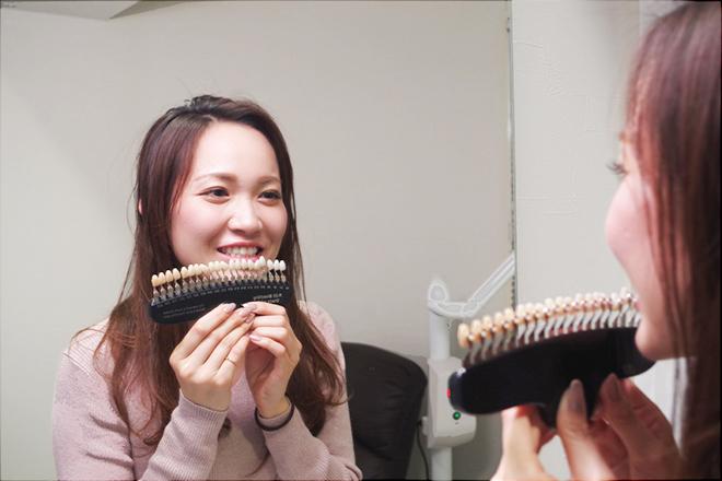 ホワイトニング カフェ 摂津本山店(Whitening cafe) 理想の白さで輝く笑顔を手に入れませんか♪