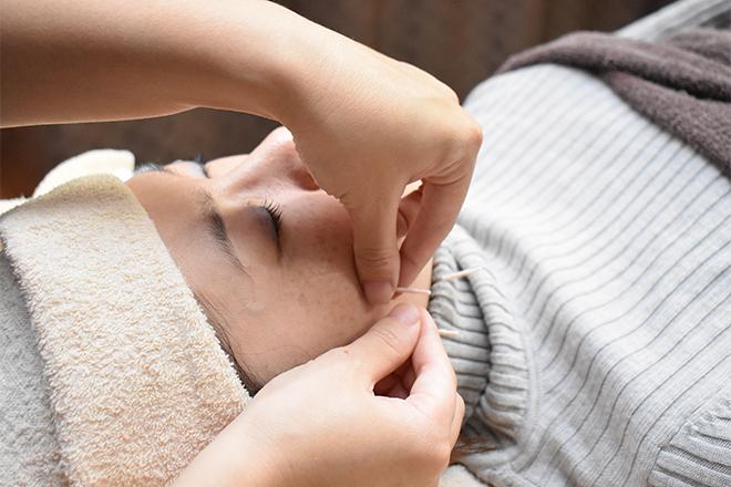 ルーチェ(鍼灸サロンRuce) 人気は「美容鍼灸」!