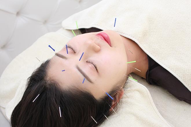 アキュモンド(acumond) トータルデザイン美容鍼コース 60分 が人気