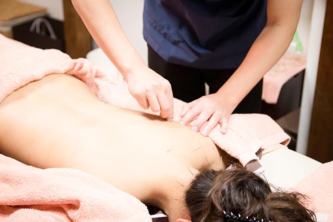 Resort 鍼灸サロン 健康美容鍼灸が人気☆