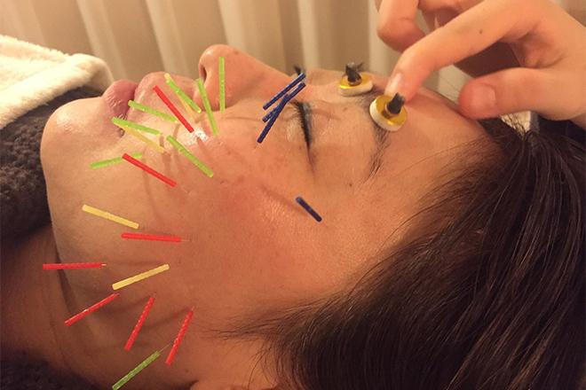 コルポ(美容整体鍼灸院 CORP) 潤いのあるお肌へ導いていきます