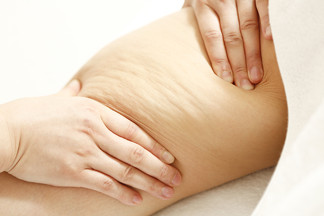 カシェット 銀座店(Cachette) 筋肉・リンパ・脂肪・セルライトを刺激するように