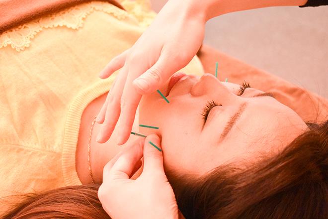 美容鍼と小顔調整をはじめ様々な技術を駆使!
