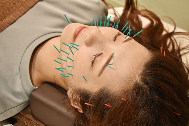 アネモネ 梅田院 「美顔鍼灸+骨盤骨格調整」が一番人気♪