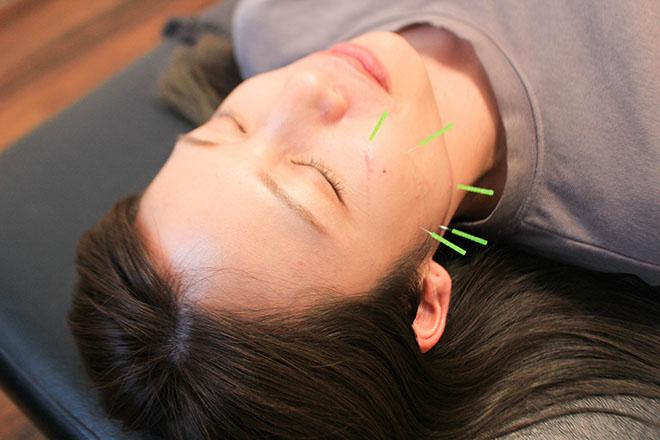 エクラ 鍼灸院(eclat) リラクゼーション&美容鍼の贅沢メニュー♪