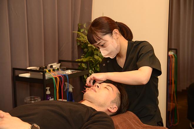 Q太郎 トータルボディケア 梅田院 美容鍼がとても人気です♪