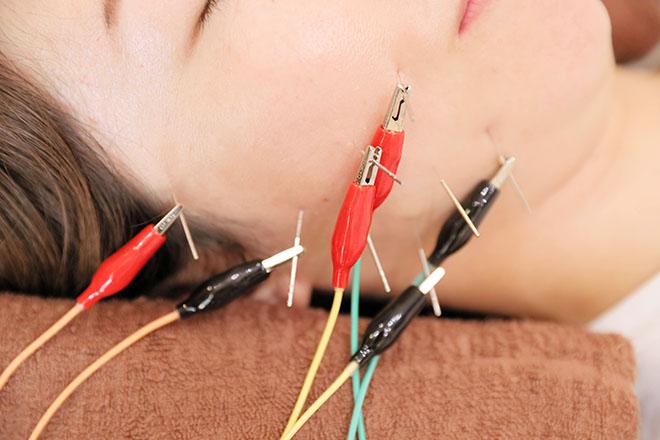 オカモト鍼灸整骨院 美容鍼でお肌の変化を実感してください!