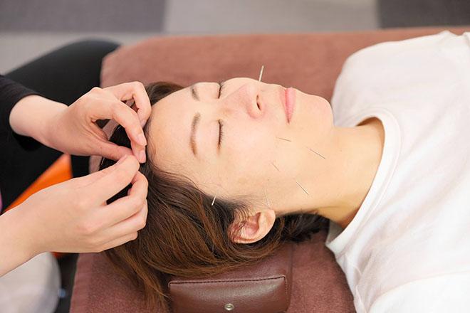 オカモト鍼灸整骨院 専用の鍼でお肌と筋肉にWアプローチ