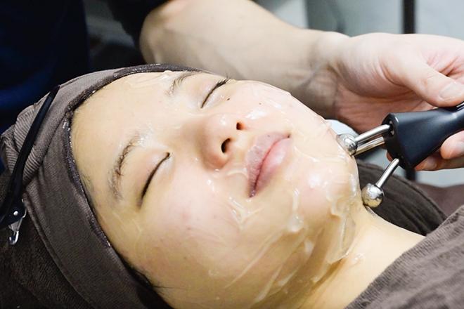 はなやま鍼灸整骨院 美容鍼はEMSとのセットがデフォルト!
