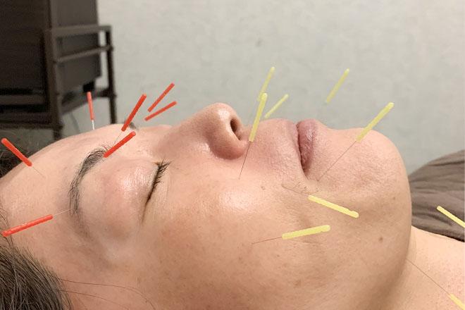はなやま鍼灸整骨院 1回でも効果を実感!人気の美容鍼