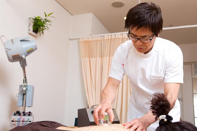 銀座ときた鍼灸治療院 カッピング