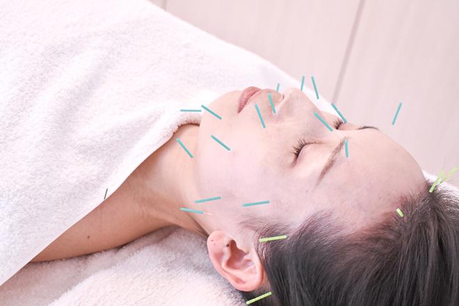 めぐむ美容鍼灸院    メグムビヨウシンキュウイン  のイメージ