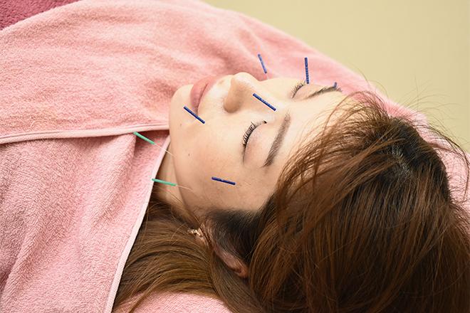 鍼灸マッサージ治療院 すきっぷのメイン画像