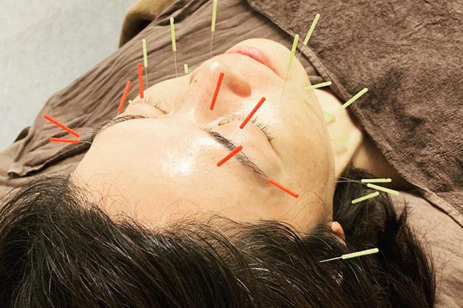 はなやま鍼灸整骨院のメイン画像